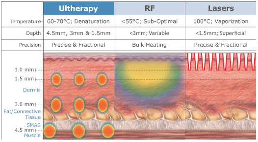 Ultherapy vs radio frequency vs laser fort lauderdale FL